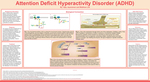 Attention Deficit Hyperactivity Disorder (ADHD) by Ajay Jayaraman and Matthew Lee